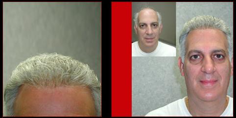 הארכות שיער ותוספות לגברים