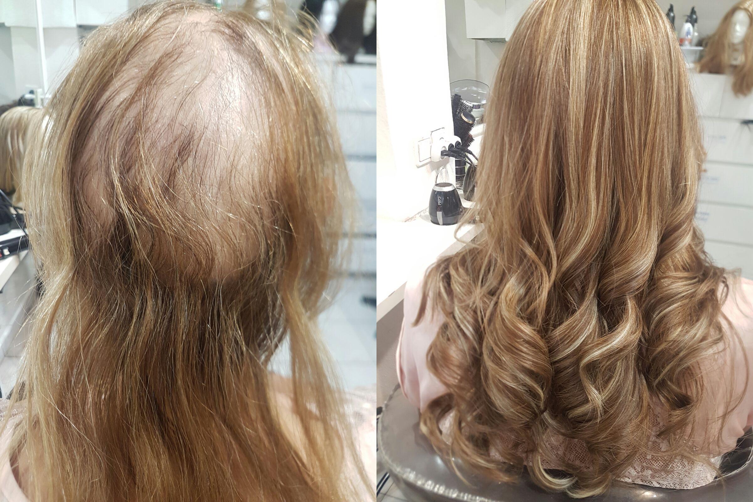 תוספות שיער - לפני