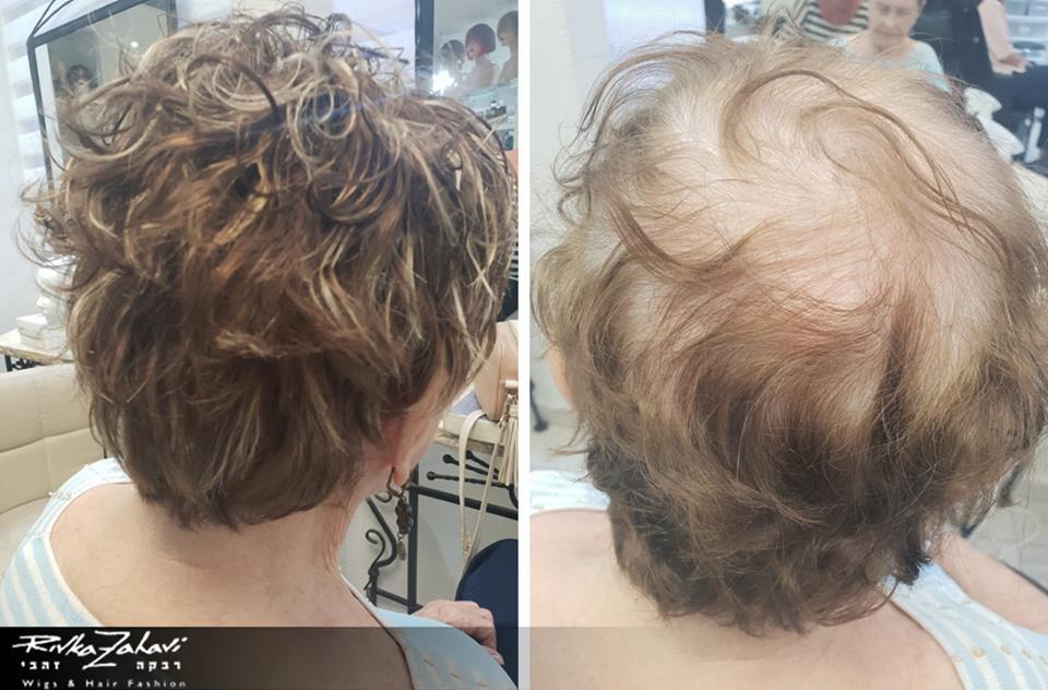 תוספות שיער - אחרי